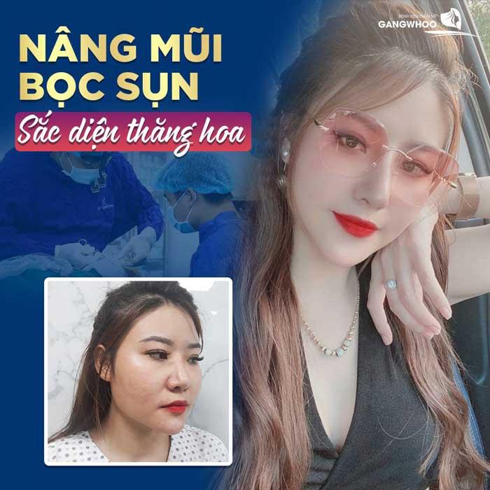 nang mui boc sun sac dien thang hoa