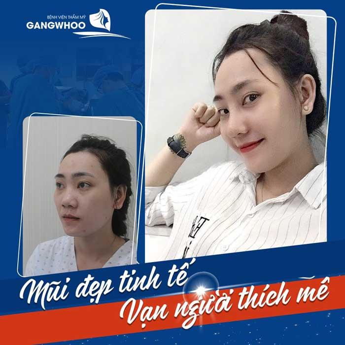 nang mui bvtm gangwhoo 8