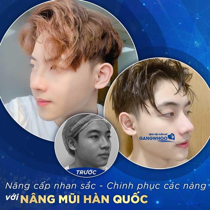 nang mui han quoc 1