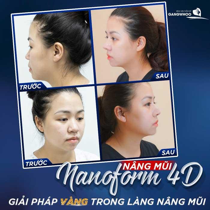 Phẫu thuật nâng mũi là phương pháp chỉnh hình dáng mũi nhanh chóng và hiệu quả