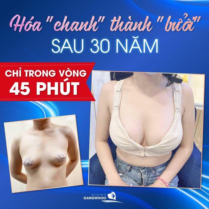bảng giá nâng ngực nano không chip tại BVTM Gangwhoo là 75 triệu ưu đãi giảm còn 45 triệu đồng