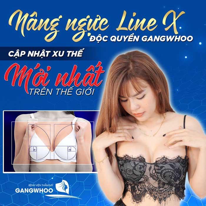 Phương pháp nâng ngực line x tại bvtm Gangwhoo