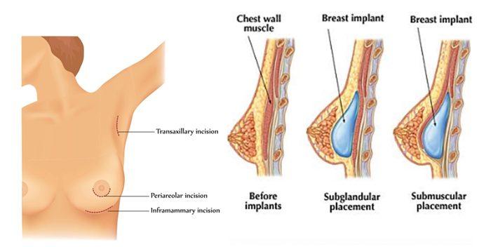 phẫu thuật nâng ngực nội soi đường nách