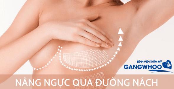 Phương pháp nâng ngực bằng đường nách chi tiết nhất