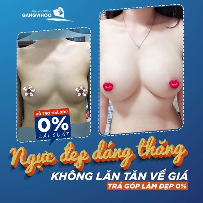 Nâng ngực trả góp lãi suất 0%