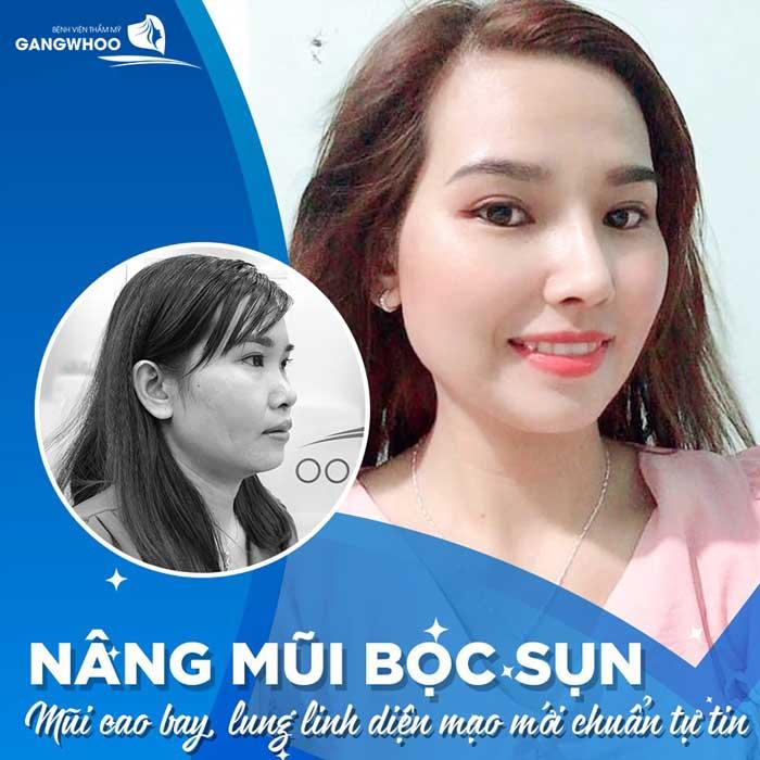 phuong phap nang mui boc sun