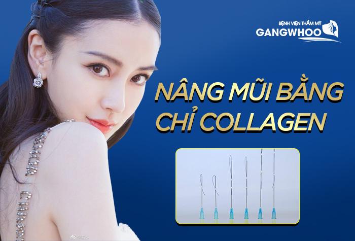 Phương pháp nâng mũi bằng chỉ collagen