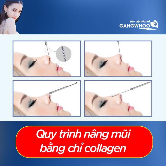 The collagen thread rhinoplasty procedure