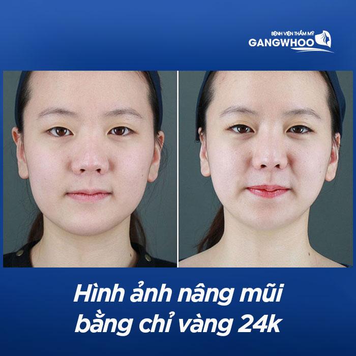 Hình ảnh nâng mũi bằng chỉ vàng 24k
