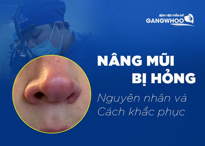 Nâng mũi bị hỏng: nguyên nhân và cách khắc phục