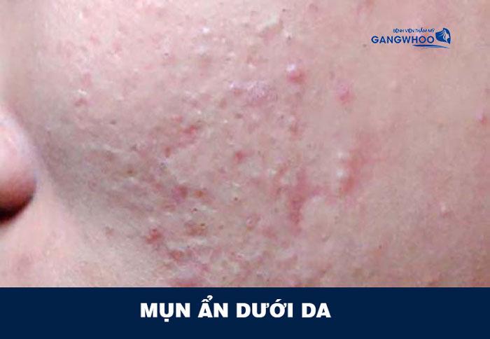 Tình trạng mụn ẩn dưới da