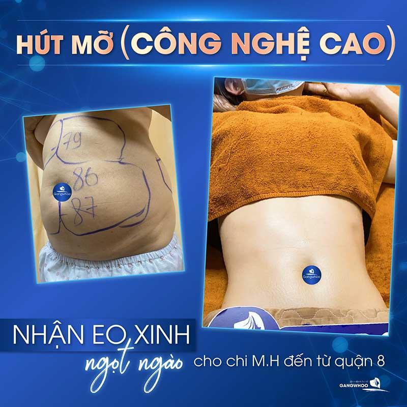 hut mo 1