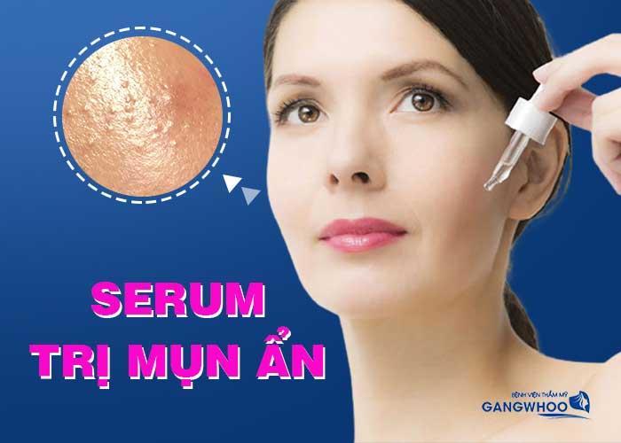 Serum trị mụn ẩn hiệu quả hiện nay