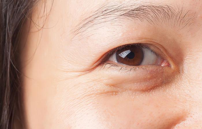 Dưa leo giúp giảm tình trạng bọng mắt