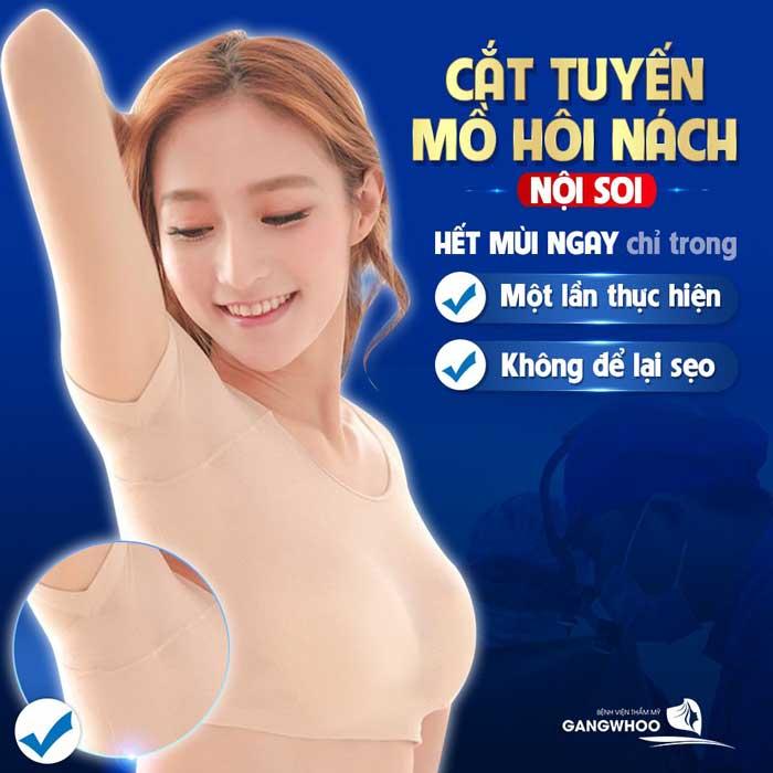 Trị hôi nách bằng hút tuyến mồ hôi nội soi tại BVTM Gangwhoo