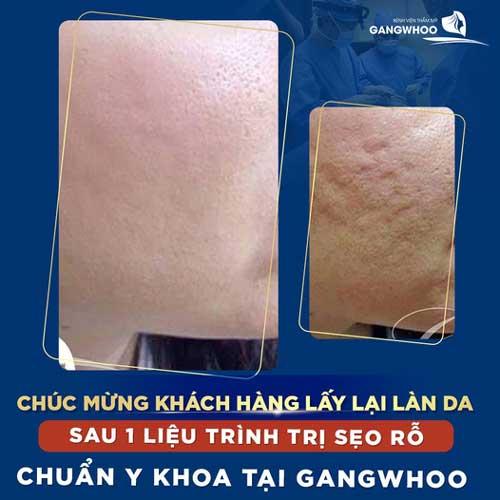 collagen lam day seo lom