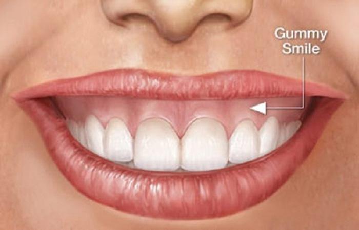 phẫu thuật cười hở lợi bao nhiều tiền?