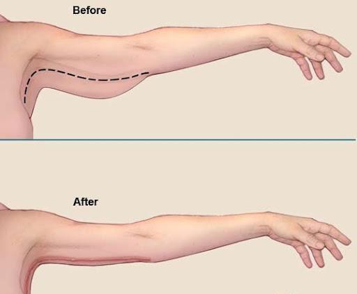 Những trường hợp nào nên hút mỡ bắp tay