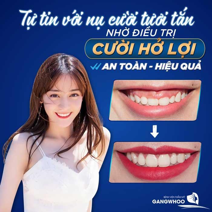 phẫu thuật cười hở lợi ở đâu tốt tại TPHCM