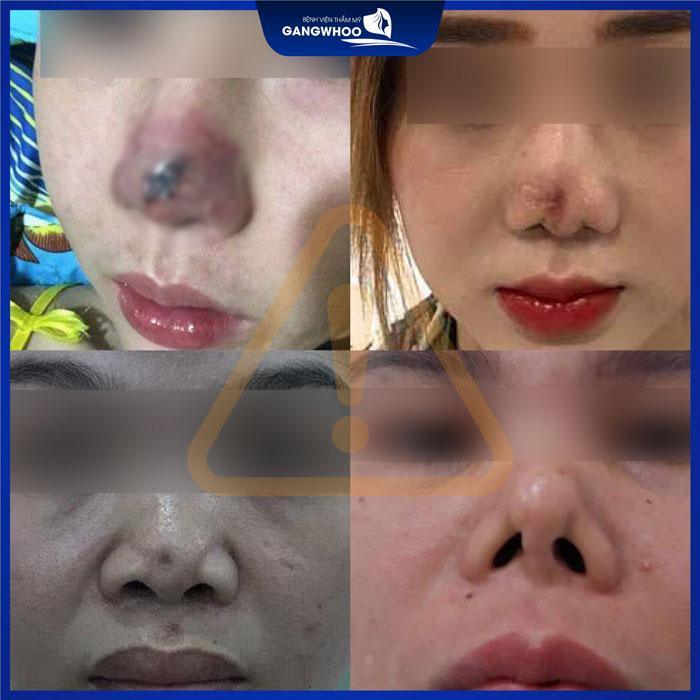 Những hạn chế khi sử dụng sụn tự thân là sẽ xảy ra hiện tượng cong vẹo hoặc tự tiêu